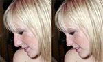 Урок - Пластическая операция носа